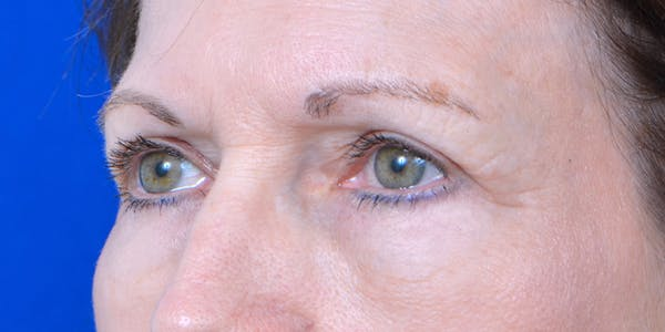 Eyelid Surgery Gallery - Patient 60806639 - Image 4