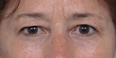 Eyelid Surgery Gallery - Patient 60806640 - Image 1