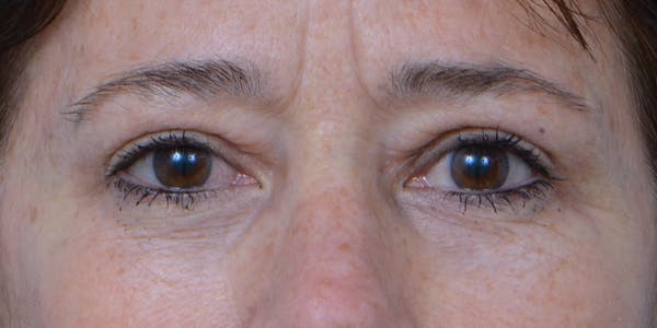 Eyelid Surgery Gallery - Patient 60806640 - Image 2