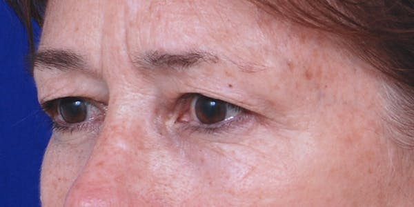 Eyelid Surgery Gallery - Patient 60806640 - Image 3