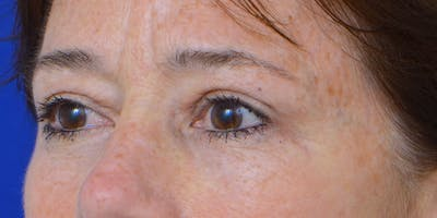 Eyelid Surgery Gallery - Patient 60806640 - Image 4