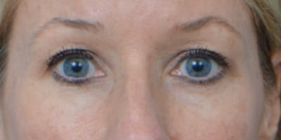 Eyelid Surgery Gallery - Patient 60806641 - Image 1