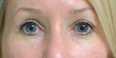 Eyelid Surgery Gallery - Patient 60806641 - Image 2