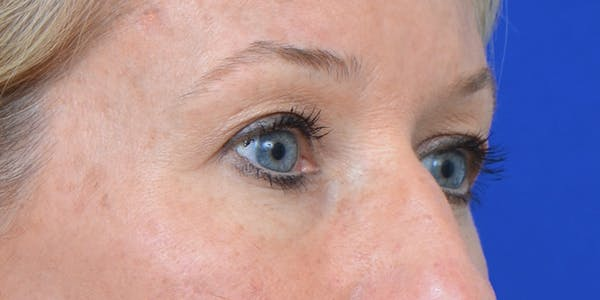 Eyelid Surgery Gallery - Patient 60806641 - Image 3