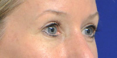 Eyelid Surgery Gallery - Patient 60806641 - Image 4