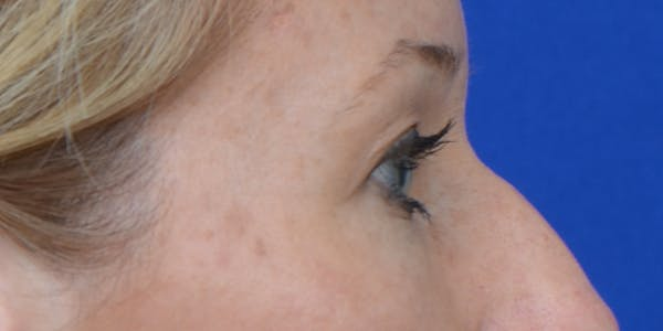 Eyelid Surgery Gallery - Patient 60806641 - Image 5