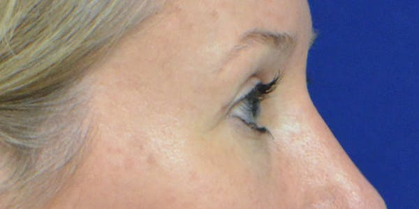 Eyelid Surgery Gallery - Patient 60806641 - Image 6