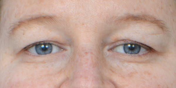 Eyelid Surgery Gallery - Patient 60806642 - Image 1