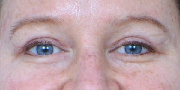 Eyelid Surgery Gallery - Patient 60806642 - Image 2