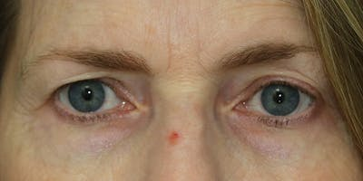 Eyelid Surgery Gallery - Patient 60806643 - Image 1