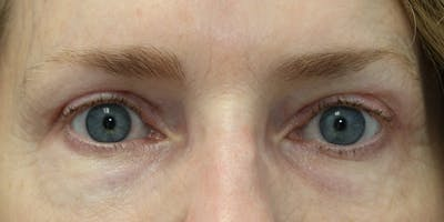 Eyelid Surgery Gallery - Patient 60806643 - Image 2