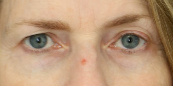 Eyelid Surgery Gallery - Patient 60806643 - Image 3