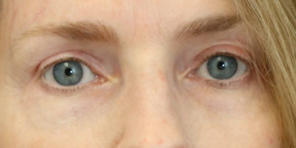 Eyelid Surgery Gallery - Patient 60806643 - Image 4