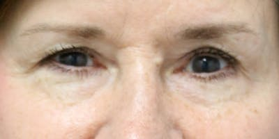Eyelid Surgery Gallery - Patient 60806644 - Image 1