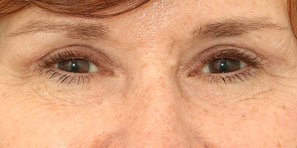Eyelid Surgery Gallery - Patient 60806644 - Image 2
