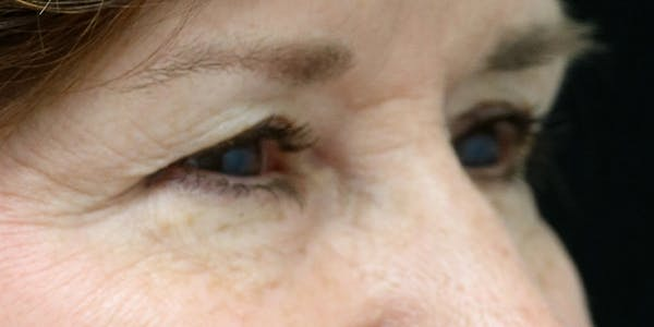 Eyelid Surgery Gallery - Patient 60806644 - Image 3