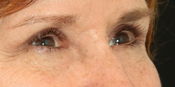 Eyelid Surgery Gallery - Patient 60806644 - Image 4
