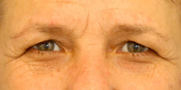 Eyelid Surgery Gallery - Patient 60806645 - Image 1