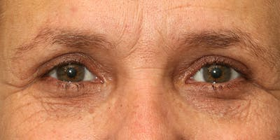 Eyelid Surgery Gallery - Patient 60806645 - Image 2