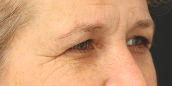 Eyelid Surgery Gallery - Patient 60806645 - Image 3