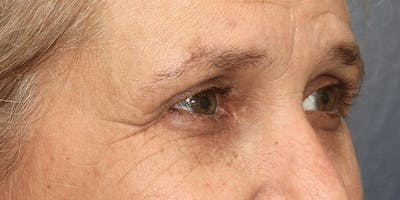 Eyelid Surgery Gallery - Patient 60806645 - Image 4