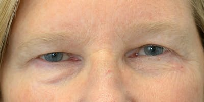 Eyelid Surgery Gallery - Patient 60806646 - Image 1