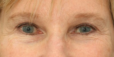 Eyelid Surgery Gallery - Patient 60806646 - Image 2