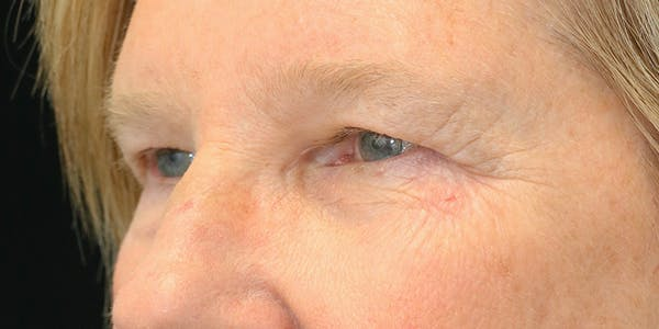 Eyelid Surgery Gallery - Patient 60806646 - Image 3
