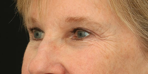 Eyelid Surgery Gallery - Patient 60806646 - Image 4