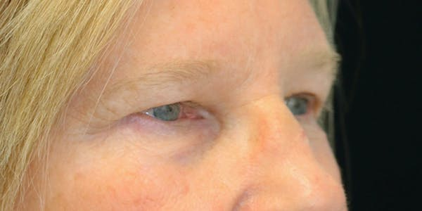 Eyelid Surgery Gallery - Patient 60806646 - Image 5