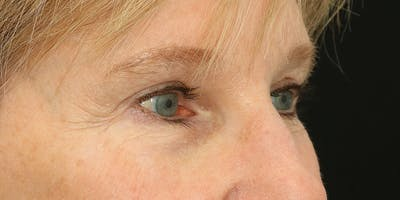 Eyelid Surgery Gallery - Patient 60806646 - Image 6
