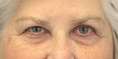 Eyelid Surgery Gallery - Patient 60806647 - Image 1