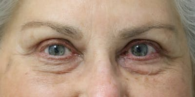 Eyelid Surgery Gallery - Patient 60806647 - Image 2