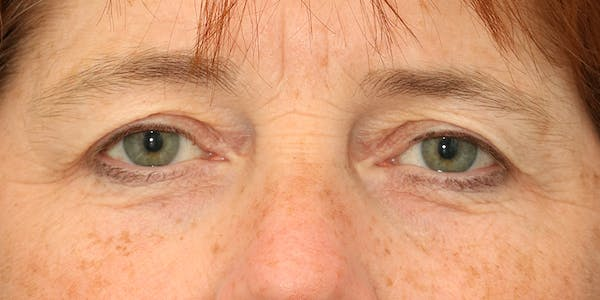 Eyelid Surgery Gallery - Patient 60806648 - Image 1