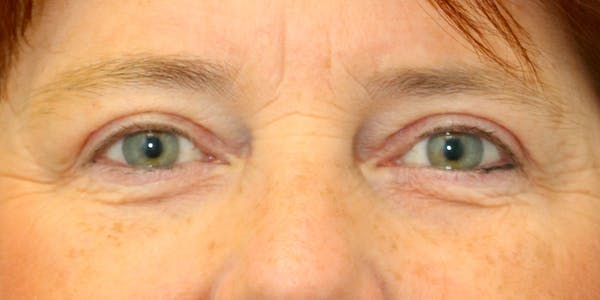 Eyelid Surgery Gallery - Patient 60806648 - Image 2