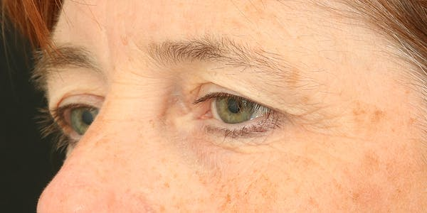 Eyelid Surgery Gallery - Patient 60806648 - Image 3