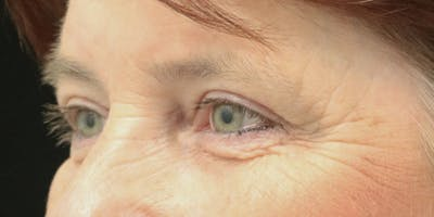 Eyelid Surgery Gallery - Patient 60806648 - Image 4