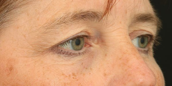 Eyelid Surgery Gallery - Patient 60806648 - Image 5