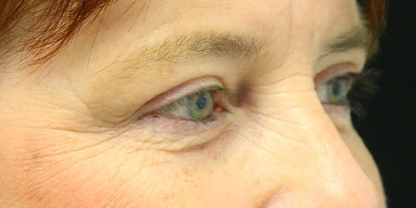 Eyelid Surgery Gallery - Patient 60806648 - Image 6