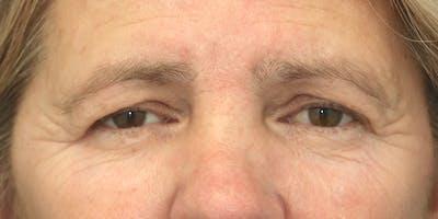 Brow Lift Gallery - Patient 60806840 - Image 1