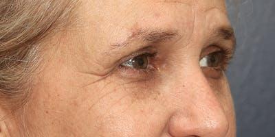 Brow Lift Gallery - Patient 60806835 - Image 4