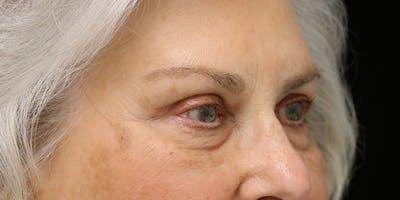 Brow Lift Gallery - Patient 60806837 - Image 4