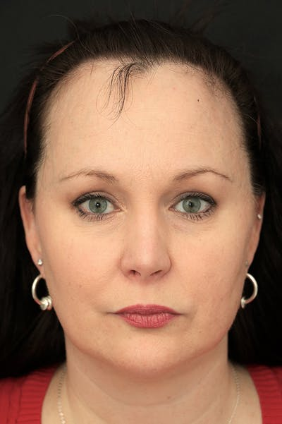 Hairline Advancement Gallery - Patient 60806870 - Image 1