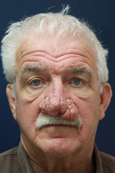 Rhinophyma Surgery Gallery - Patient 60806981 - Image 1