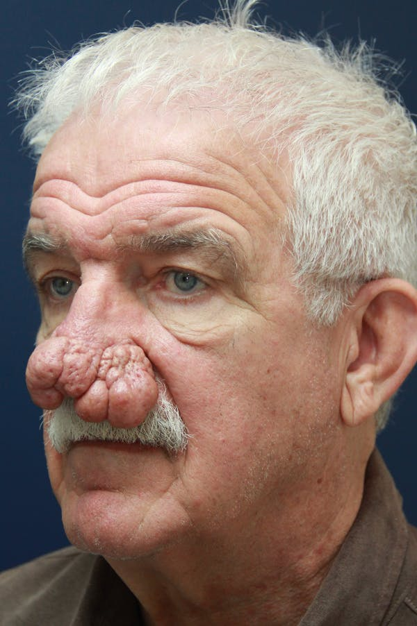 Rhinophyma Surgery Gallery - Patient 60806981 - Image 3