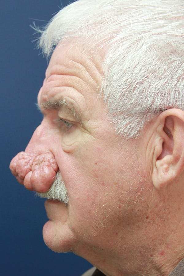 Rhinophyma Surgery Gallery - Patient 60806981 - Image 5