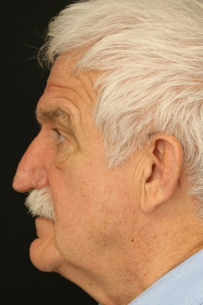 Rhinophyma Surgery Gallery - Patient 60806981 - Image 6