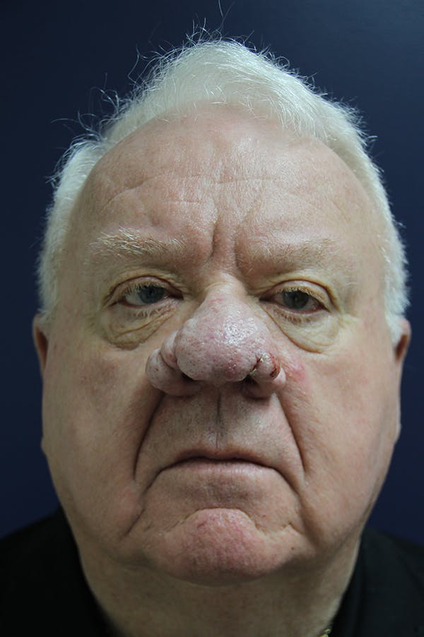 Rhinophyma Surgery Gallery - Patient 60806982 - Image 1