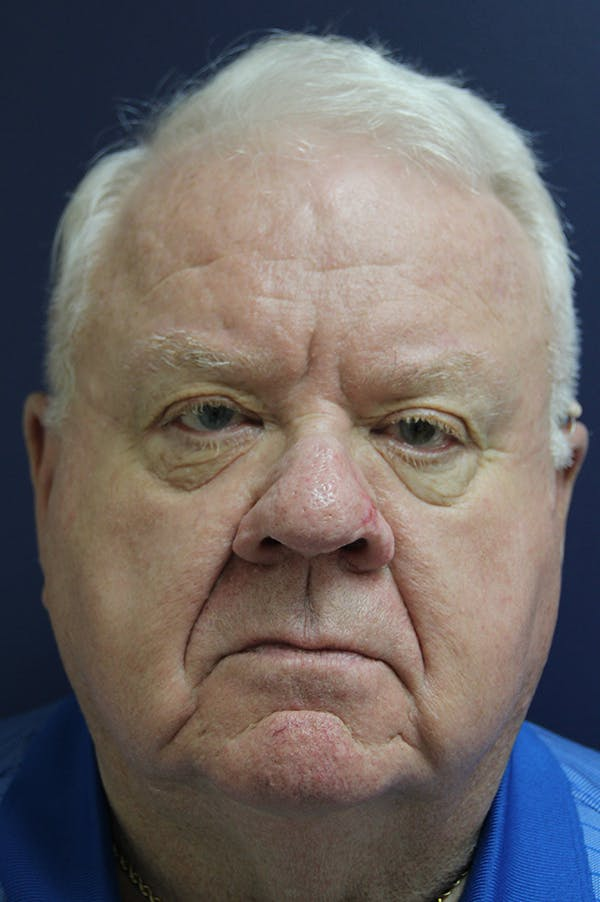 Rhinophyma Surgery Gallery - Patient 60806982 - Image 2