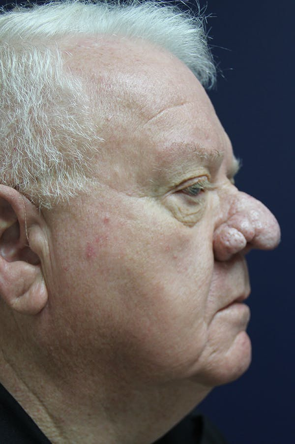 Rhinophyma Surgery Gallery - Patient 60806982 - Image 5